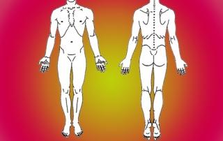 lyme multi systemic disease